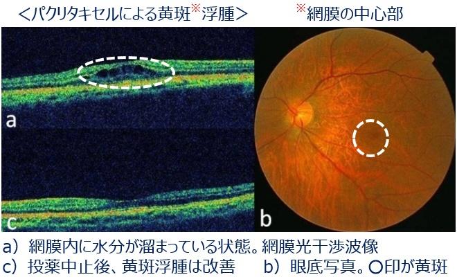 抗がん剤治療と眼の症状3
