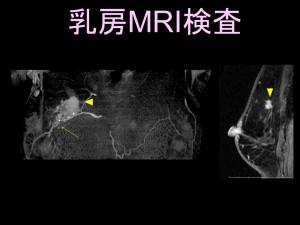 乳房MRI検査